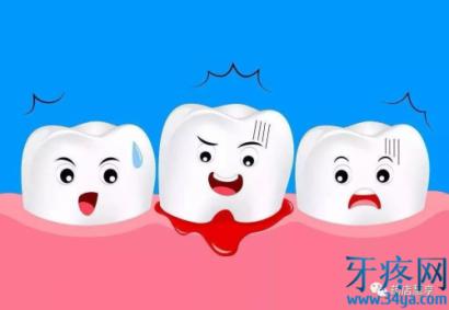 牙周炎的表现症状,专业联合用药及注意事项