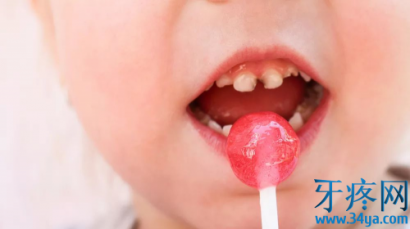 蛀牙都是吃糖惹的祸?