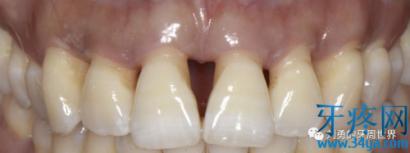 牙周炎黑三角患者的二次手术治疗后续随访