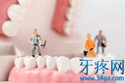 牙医洗牙会洗坏牙齿吗?