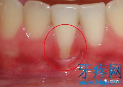 牙龈退缩到底什么原因?