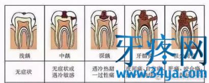 牙疼怎么办?不是所有牙都有机会被补好!