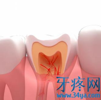 为什么在晚上更容易牙疼?