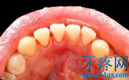 治疗牙痛、牙龈肿痛发炎小偏方,好用又有效