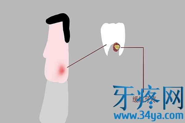 牙痛就是上火?多少中国人被欺骗,原因不止一个,别毁了你的健康