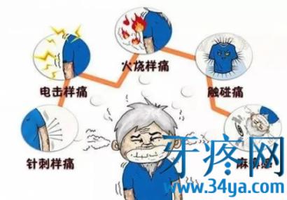 三叉神经痛疾病定义及临床症状