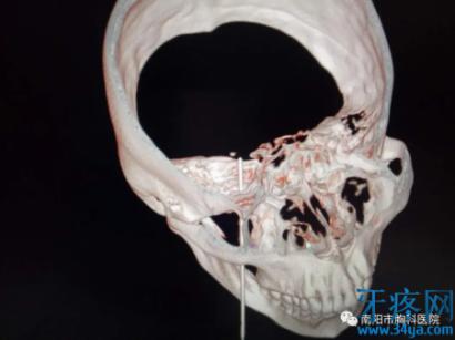 三叉神经痛手术