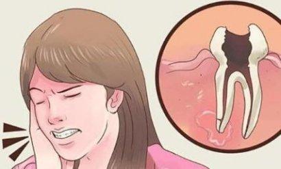 牙疼类型与用药方法
