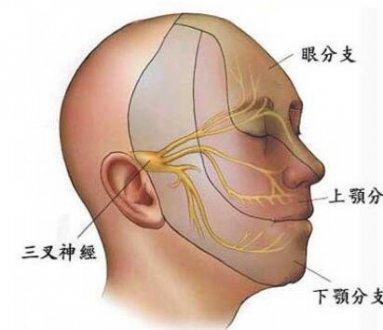 三叉神经痛与牙痛的区别是什么?