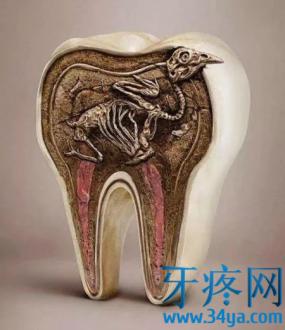 蛀牙到牙髓了,为什么不让杀牙髓?