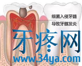 不同类型牙痛的用药技巧