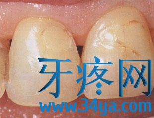 牙疼找不到原因?牙疼可能是牙隐裂